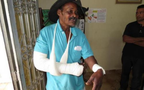 Sr. Antoninho, 11 pontos no rosto, fratura e ferimentos nos braços. Foto: Ewerton Libório/EAACONE